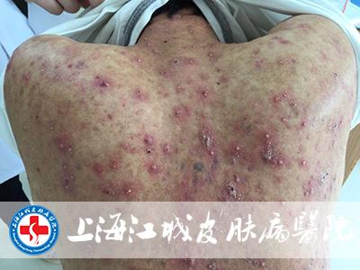 上海流行病新闻发布会:现有的16例本地确诊病例之间存在相关性